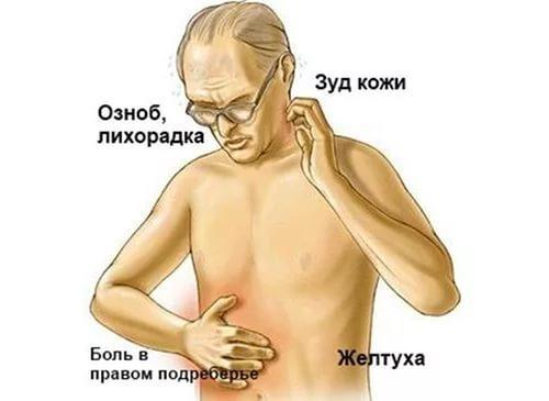 Гепатит А: симптомы и лечение, вакцина