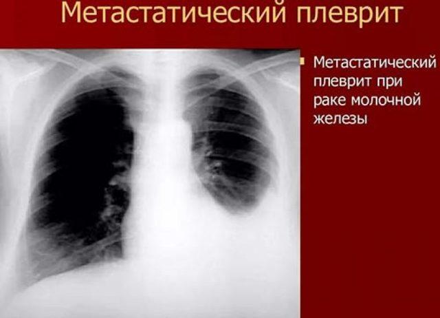 Метастатический Плеврит: Симптомы, Диагностика, Лечение