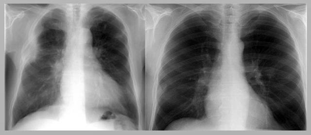 Центральный рак легкого: методы терапии
