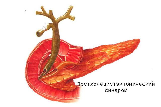 Постхолецистэктомический синдром: код МКБ, симптомы, клинические рекомендации по лечению, купирование обострений, диета