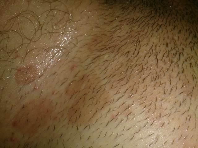 Паховая эпидермофития у мужчин и женщин: фото, симптомы и лечение грибка в паху