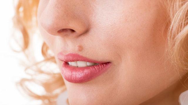 Пигментный невус пограничный, внутридермальный: код МКБ, симптомы и лечение