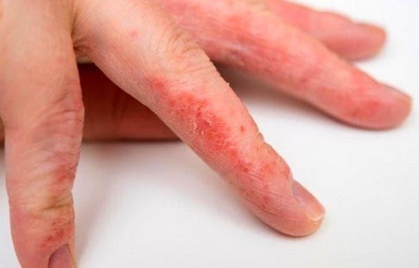 Мазь от контактного дерматита на руках и других участках: лечение наружными средствами