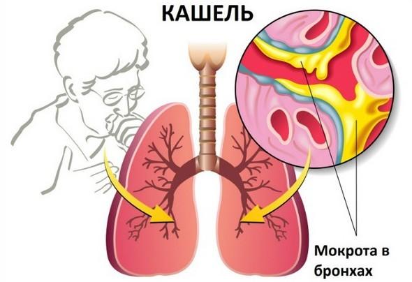 Симптомы бронхоэктатичесой болезни легких: как проявляется заболевание