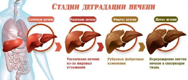 Симптомы и признаки болезни печени у мужчин: как проявляется алкоголизм, камни, ожирение, другие заболевания, проблемы с кожей, лечение