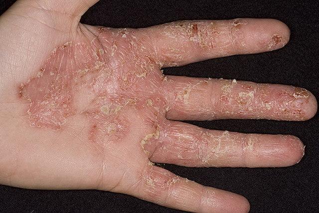 Виды экзем на руках, ногах и других частях тела: фото, классификация разновидностей
