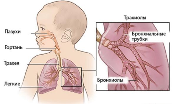 Как лечить бронхит у ребенка 2 лет