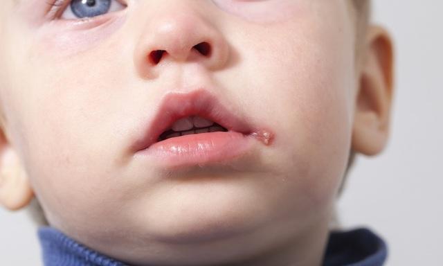 Герпес на губе у ребенка: как лечить заболевание у новорожденного, грудничка и детей постарше