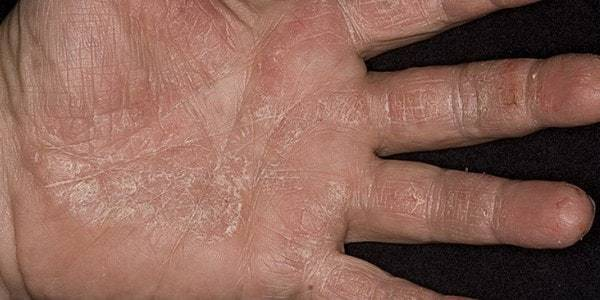 Шелушится кожа на руках у взрослых: причины, лечение традиционными и народными методами