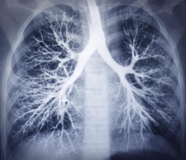 Как выглядит бронхит на рентгене
