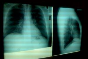 Причины Пневмонии + Факторы Риска + Пути Передачи