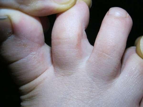 Клотримазол, раствор от грибка ногтей: отзывы, инструкция по применению, цена
