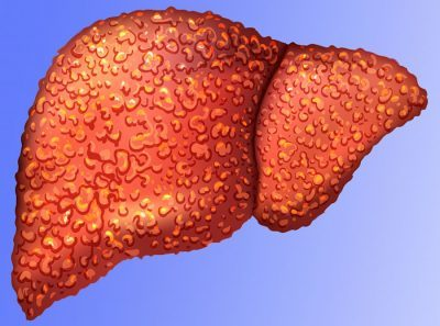 Жировая дистрофия печени - что это, симптомы и лечение