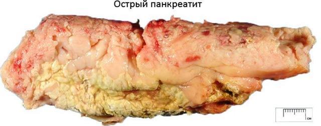 Операция по удалению желчного пузыря: показания к холецистэктомии, метод лапароскопии, полостное вмешательство, сколько длится, осложнения, реабилитация