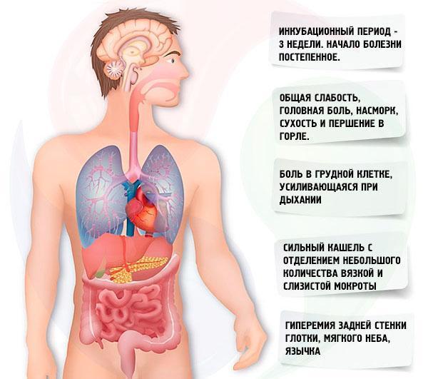 Антибиотики при двусторонней пневмонии