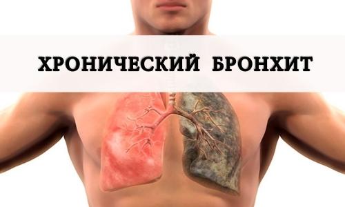 Хронический бронхит по мкб 10: классификация заболевания