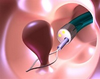 Полипы в желчном пузыре: холестериновые, аденоматозные, код МКБ, симптомы, чем опасны новообразования, что делать, лечение без операции, когда надо удалять