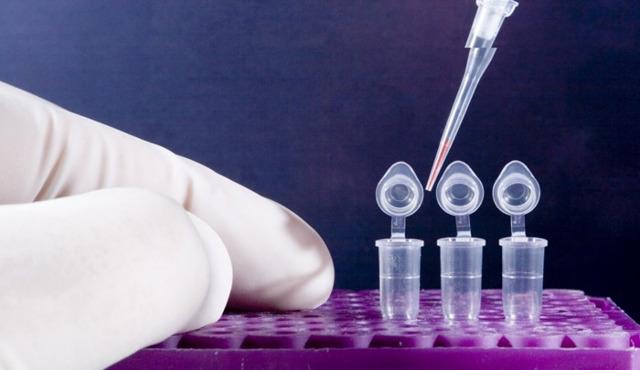 ПЦР ВПЧ: что такое полимеразно-цепная реакция, как сдавать анализ женщине и мужчине