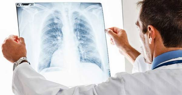Гнойная пневмония: особенности лечения