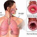 Профилактика бронхита: как помочь организму
