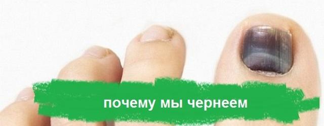 Почернел ноготь на большом пальце ноги или руки: что делать, как распознать причину