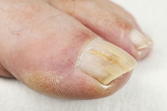 Врач по ногтям: как называется специалист, лечащий онихомикоз на руках и ногах
