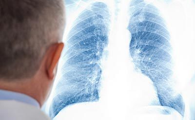 Пневмония без Температуры: Причины, Симптомы, Особенности