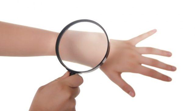 Посттравматическая экзема: основные виды лечения, фото заболевания и профилактика