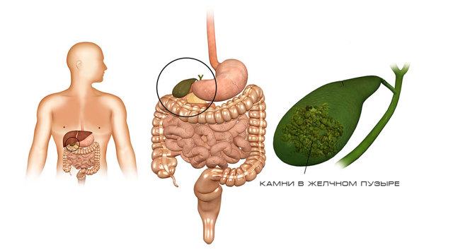 Боли в желчном пузыре: при ходьбе, после еды, симптомы, признаки