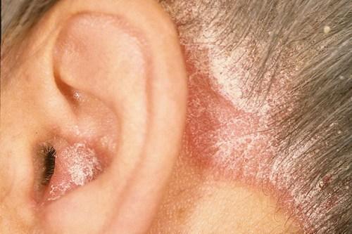 Средства для лечения себорейного дерматита: таблетки и другие медикаментозные препараты