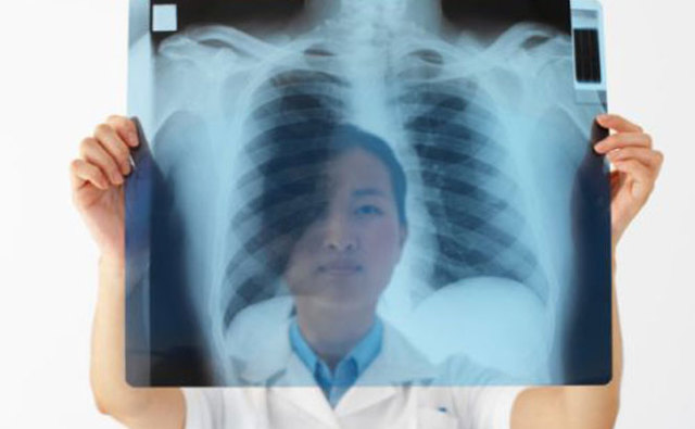Покажет Ли Флюорография Пневмонию: Все, Что Вы Хотели Знать