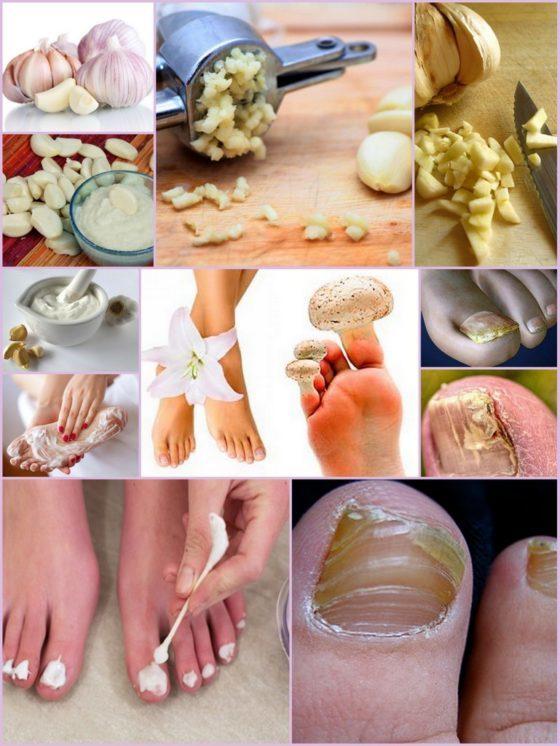 Чеснок от грибка ногтей на ногах: народные рецепты для быстрого лечения болезни