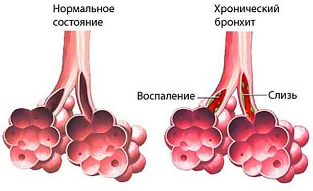 Хронический бронхит: характерные симптомы заболевания