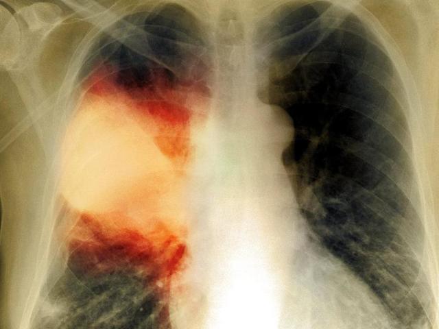 Пневмония и все, что нужно знать о ней