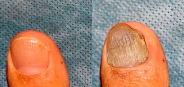 Мазь от грибка на ногах: недорогие, но эффективные препараты против микоза кожи и ногтей