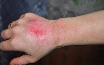 Ожог на губе — химический и термический: степени, первая помощь и методы лечения