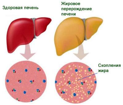 Тяжесть в правом боку: причины боли и чувства распирания под ребрами спереди, со спины, внизу живота, почему возникает после еды, сопровождается тошнотой