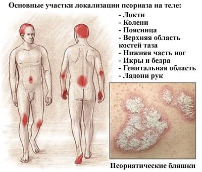 Псориаз на лице: симптомы, причины, лечение традиционными и народными средствами