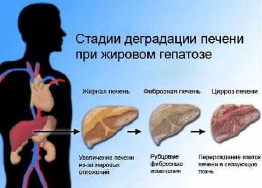 Что такое гепатоз печени: виды, чем опасен