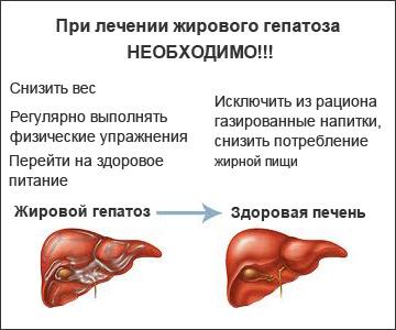 Жировой гепатоз печени - что это, причины, признаки, чем опасен
