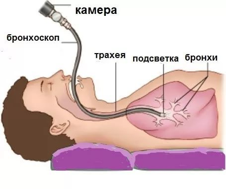 Нужна ли бронхоскопия при среднедолевой правосторонней пневмонии