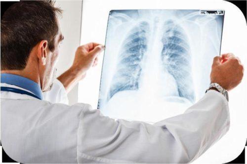 Как Проявляется Рак Легких: Характерные Симптомы + Диагностика
