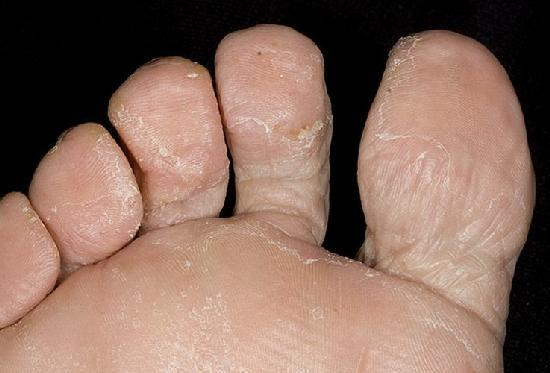 Грибок на ногах: первые признаки, виды и стадии, лечение и меры профилактики