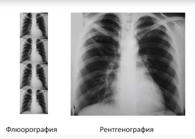 Флюорография при грудном вскармливании: можно ли делать
