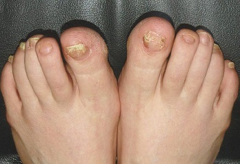 Лечение грибка ногтей народными средствами: самые эффективные рецепты в домашних условиях