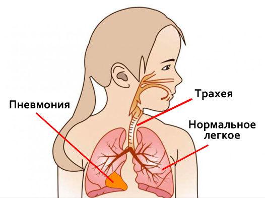 Восстановление После Пневмонии: Диета, ЛФК, Профилактика