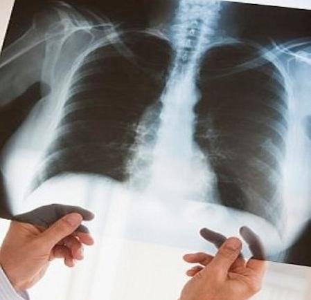 Прогноз на выживание для пациента 68 лет с инфарктом на фоне СД2, ХОБЛ и пневмонии