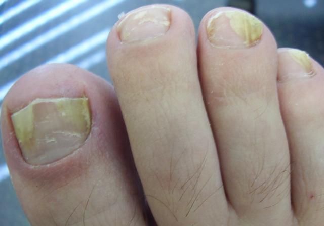 Йод от грибка: эффективные рецепты для лечения кожи и противопоказания к использованию
