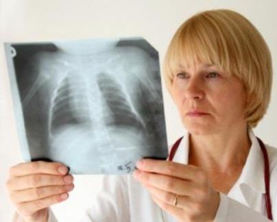 Как проходит реабилитация после пневмонии