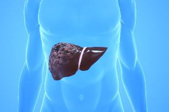 Метастазы в печени: прогноз срока жизни и возможность лечения, симптомы, диета и питание, множественные и солитарные новообразования, химиотерапия, удаление